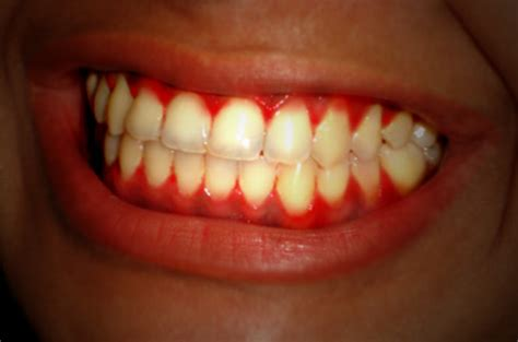 Gingival Bleeding: Prevention, care and treatment of