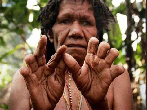 TERRIBLE TRADITIONS - Finger Cutting of Dani Tribe, New Guinea