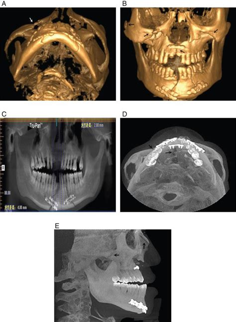 3D reconstruction images of cone beam computed tomography