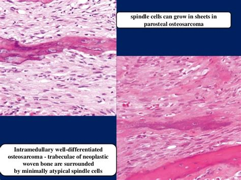 Spindle cell lesions of oral cavity part III