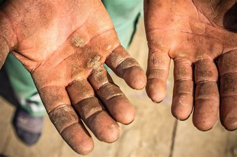 """The Pipeline: A Minnesota Public Works Connection: """"Hand"""