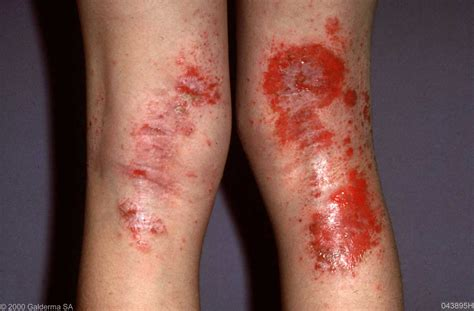 atopic dermatitis | Medical Pictures Info - Health