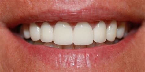 Benefits of a Smile with Straight Teeth - Navarro Dental Group