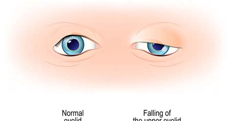 Your Ultimate Guide to Ptosis Surgery in Singapore