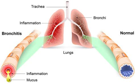 Why Do You Get Lung Disease - Asthma Lung Disease