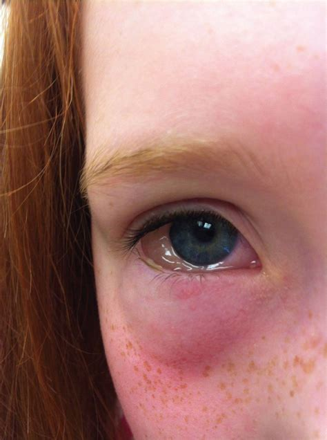 Swelling of/Around the Eye - Visual Diagnosis and