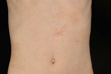 Pityriasis rubra pilaris with histologic features of